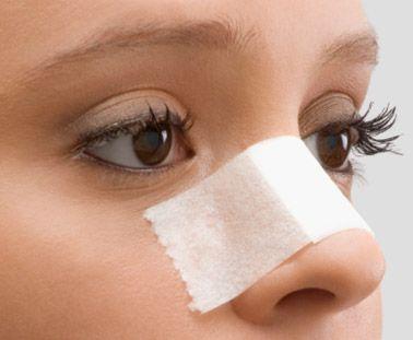 Стоит ли делать пластическую операцию (ринопластику) носа ?